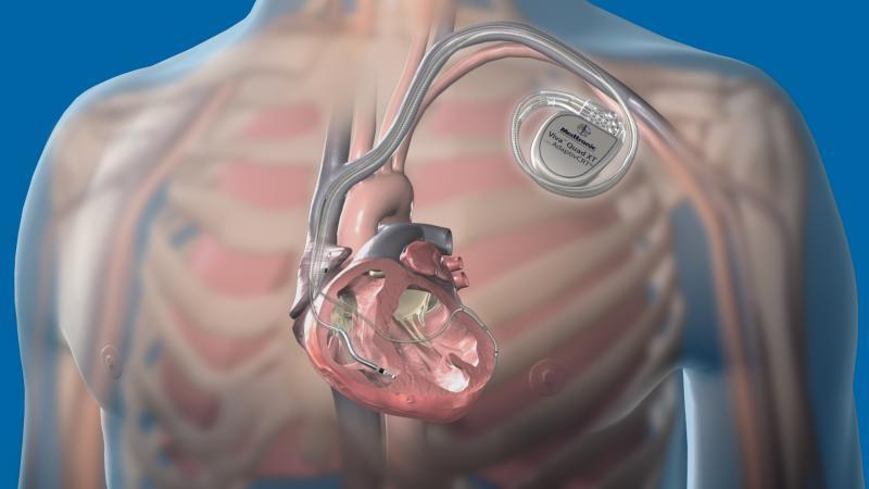Medtronic, Attain Performa, quadripolar leads