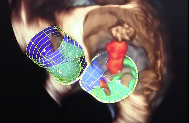 Minneapolis Heart Institute Foundation, TMVR, Tendyne, FDA, first implant, U.S.