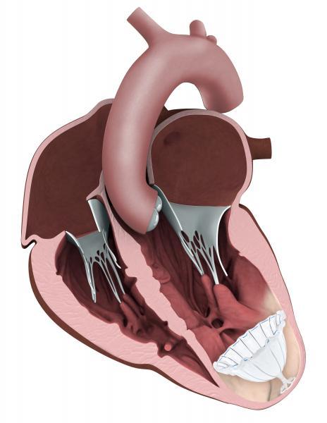 CardioKinetix, Parachute device, Heart Failure device therapy