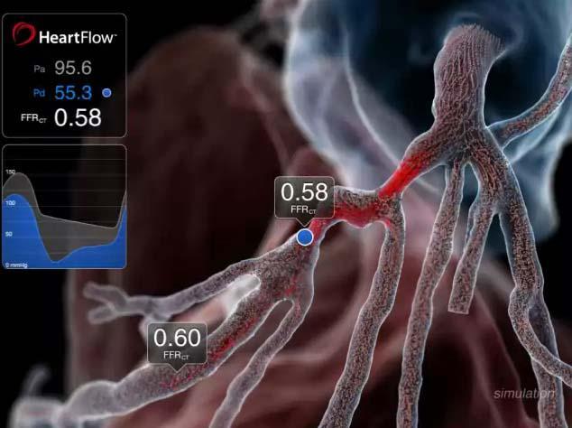 CT-FFR, Heartflow Analysis, coronary artery disease, EuroPCR, RIPCORD