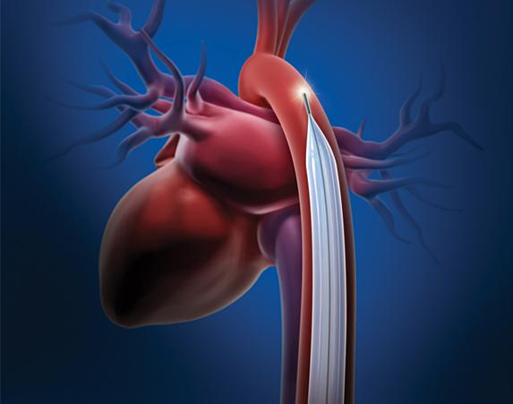 IABP, peer review, Maquet, Journal of Invasive Cardiology