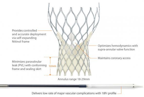 CoreValve System Heart Valve Repair