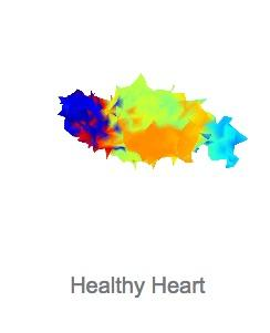 Analytics 4 Life Raises $25 Million for AI-Backed Cardiac Imaging Technology