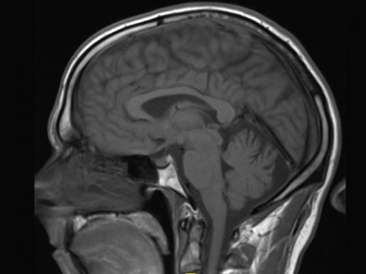 PRAC, European Medicines Agency, gadolinium-based contrast agents, safety recommendations, brain MRI