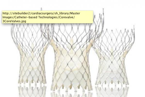 The CoreValve US Pivotal Trial - Seminars in Thoracic and ...