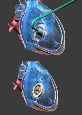 World's First Successful 52-mm Transcatheter Tricuspid Valve Implantation Completed in Italy