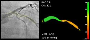 FAST Study Demonstrates High Diagnostic Accuracy of CAAS vFFR