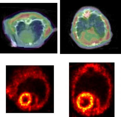 Protein Clumping May Contribute to Heart Failure Development