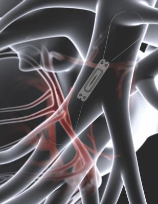 Abbott Initiates GUIDE-HF Trial for Improved Outcomes With CardioMEMS Monitor