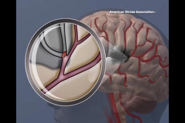 marijuana use, increased risk, stroke, heart failure, ACC 2017 study