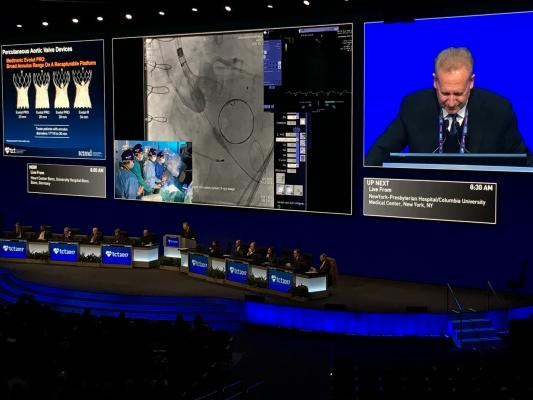 A live Corevalve TAVR case in the main arena at TCT 2017. Structural heart has moved from a science fiction discussion in future technology sessions at TCT a decade ago to now being a major portion of what the conference discusses for today's clinical practice.