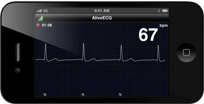 AliveCor Heart Monitor Phone Atrial Fibrillation