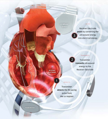Leadless Endocardial Crt Pacing Effective For Heart Failure Patients