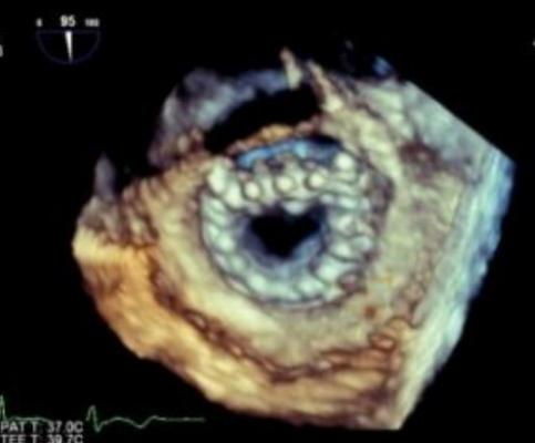 Tiara transcatheter mitral valve as seen on 3-D echo implanted in the mitral