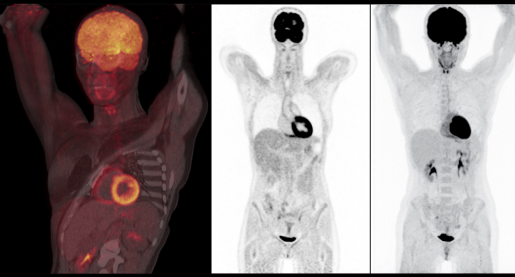 Nuclear imaging scan showing very good tissue delineation. It offers crisp overall image quality and sharply delineates the muscle and fat planes, vertebral margins and end plates, billiary radicals, renal calyces, aortic wall and papillary muscles of the heart. Scan performed on a Biograph Vision positron emission tomography/computed tomography (PET-CT) system from Siemens Healthineers.