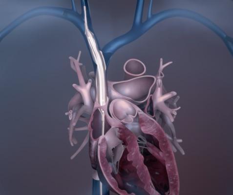 Spectranetics Initiates Class I Recall for Bridge Occlusion Balloon Catheter