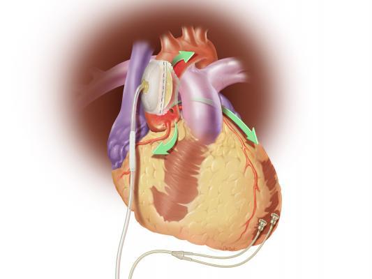 Sunshine Heart, C-Pulse, $2 million, loan, COUNTER HF, heart failure