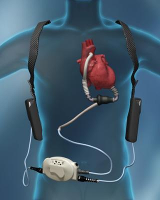 Thoratec, HeartMate II, ROADMAP