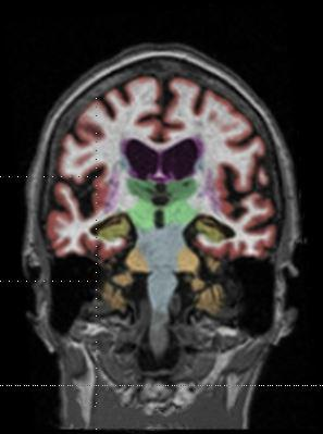 Gadolinium contrast agents (GBCAs) are partly retained in the brain, raising safety concerns, as seen in this MRI.