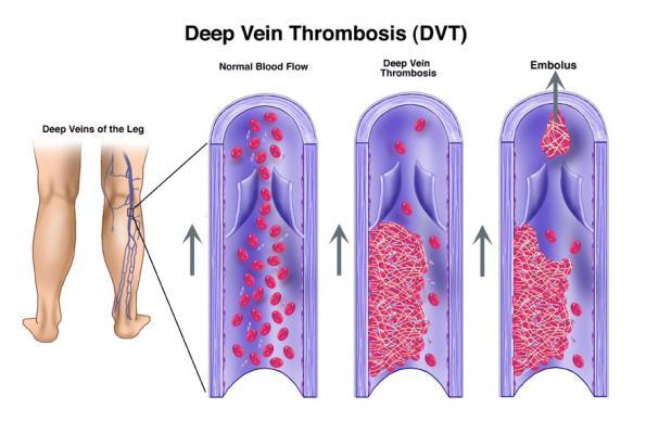 Society of Interventional Radiology SIR Deep Vein Thrombosis DVT PTS Venous