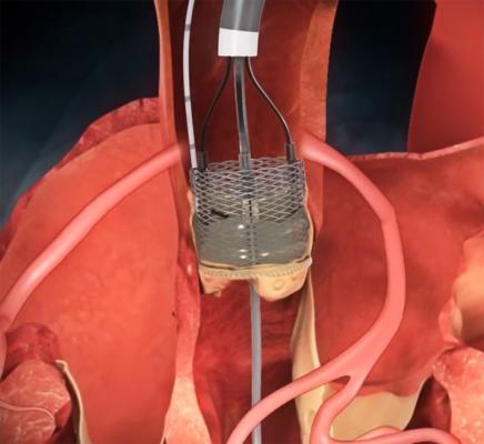 heart valve repair hybrid or cath lab reprise II boston scientific lotus tct