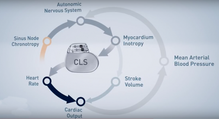 closed loop stimulation, DDD-CLS, ACC17, SPAIN trial