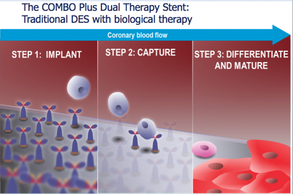 How the OrbusNeich Combo stent works.