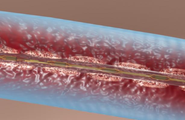 Illustration of the EkoSonic catheter aiding drug-dispersion in a DVT clot. Catheter directed thrombolysis of deep vein thrombosis.