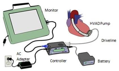 Image of the device showing the internal HVAD pump, which is connected to the external controller by a driveline cable through the skin. The controller is connected externally to the monitor, the AC adapter, and the battery.