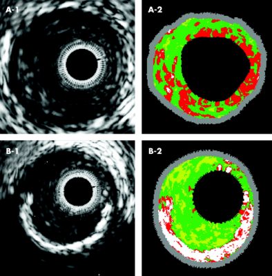 intravascular imaging ffr ultrasound ivus optical coherence tomography oct cath