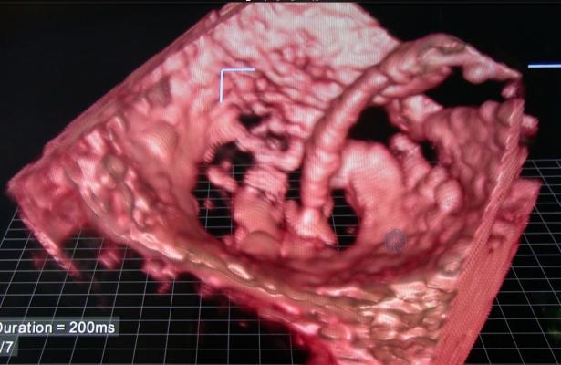 GETransesophageal Echo, TEE. Interventional echocardiography, interventional echo, Mitraclip