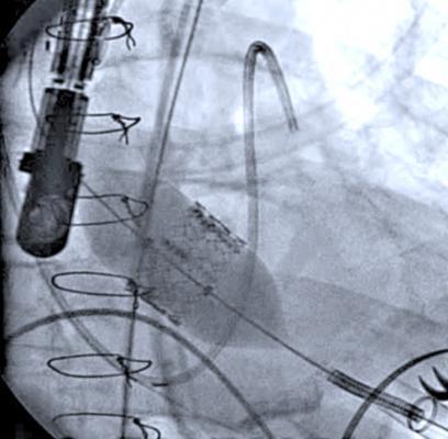 Transesophageal Echocardiogram