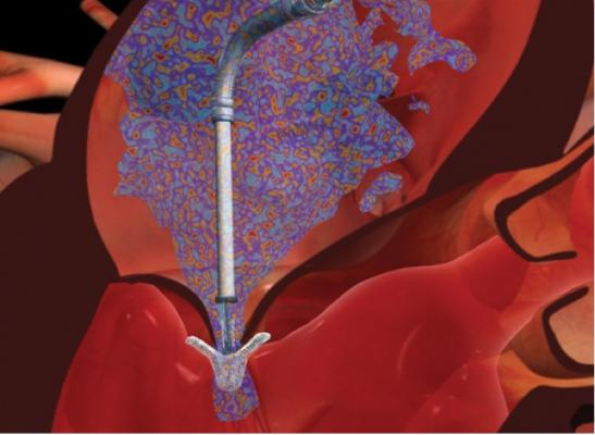 The Abbott Mitraclip device for transcatheter treatment of mitral valve regurgitation. Cross sectional view of implantion
