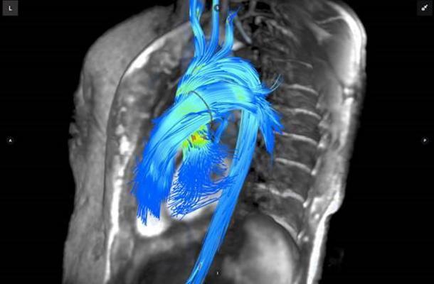 Advances In Cardiac Imaging At Rsna 2016 Daic