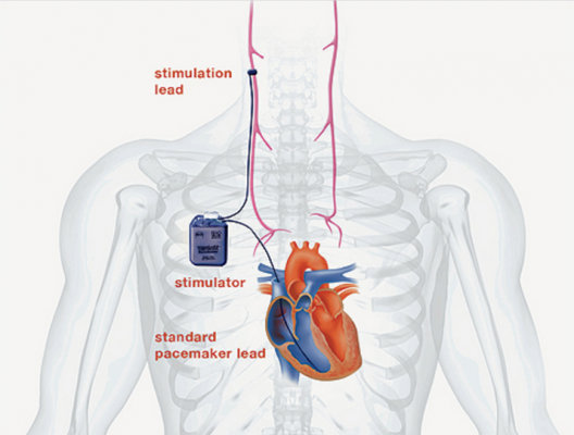 Vagus Nerve Stimulation in Heart Failure Fails to Improve Primary ...