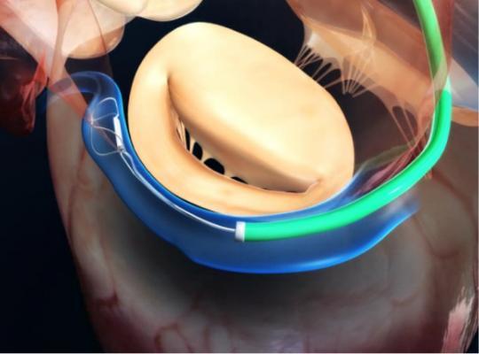The Cardiac Dimensions Carillon mitral contour system for transcatheter treatment of mitral valve regurgitation.