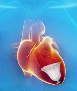 CardioKinetix, Parachute, Heart failure