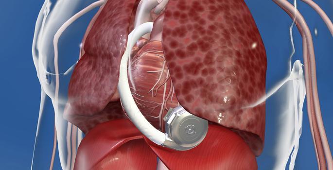 Heartware, VAD, heart failure
