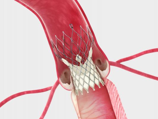 Corevalve beats surgery, ACC 2014, TAVR vs surgery