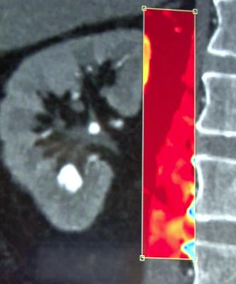 spectral CT, IQon