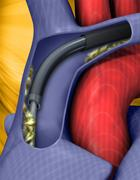 Spectranetics laser sheath being used for EP device lead extraction.