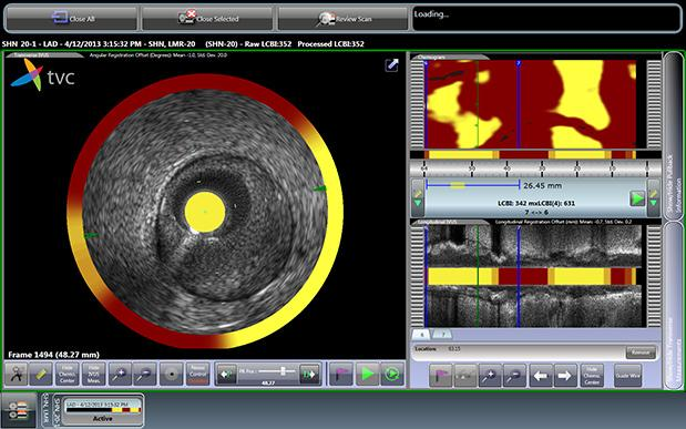Infraredx Inc. Prospect II Clinical Trial Intravascular Imaging System