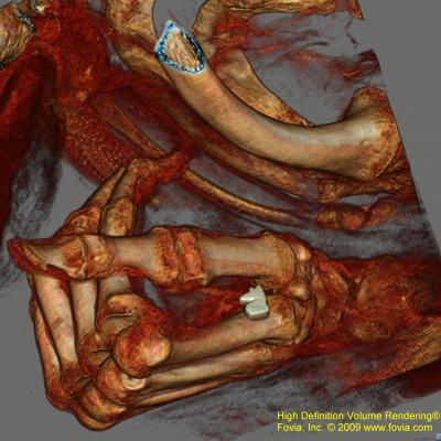 3-D reconstruction from a CT scan a mummy's hand.