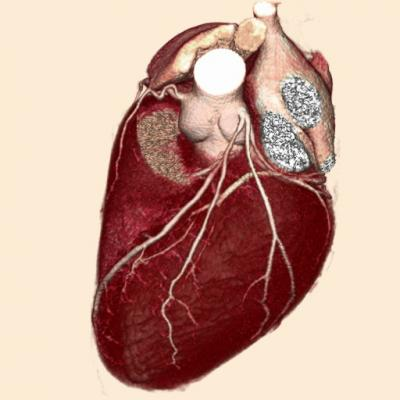 Five Health Indicators Are Enough to Predict Cardiovascular Risk, Mount Sinai Researchers Report
