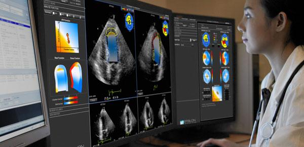 EchoInsight for Cardio Oncology