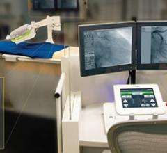 Cordinus Vascular Robotics CorPath Cath Lab Robotics Systems Angioplasty