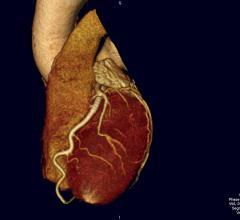 CUPID 2, gene transfer therapy, heart failure patients, no benefit, ESC 2015, SERCA2a