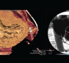 Pie Medical Imaging, 3mensio Structural Heart, mitral, septal crossing, workflow