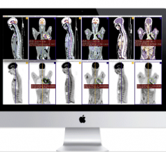 Aycan Chimaera FusionSync Advanced Visualization Fusion Imaging Software