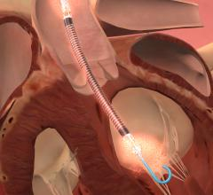 Impella, FDA, high risk PCI, abiomed